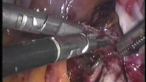 Video de Endometrioma
